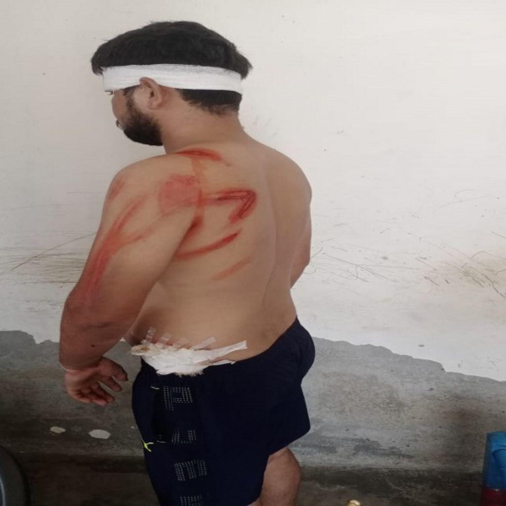 समालखा में शराबियों की दबंगई:रेहड़ी बढ़ा रहे संचालक से युवकों ने मांगा खाना, मना करने पर तलवार और कुल्हाड़ी से सिर व गर्दन पर किए वार, 5 पर केस दर्ज
