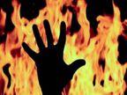 पिता ने अपने बेटे की प्रेमिका को कैरोसिन डालकर जलाया; युवती पसंद नहीं थी, पीछा छुड़ाने उठाया यह कदम|रायपुर,Raipur - Dainik Bhaskar