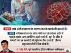 कोरोना के गंभीर मरीजों में खून के थक्के जम रहे ये फेफड़ों तक पहुंच सकते हैं लेकिन देश में ऐसे मामले कम हैं : एक्सपर्ट|लाइफ & साइंस,Happy Life - Dainik Bhaskar
