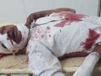 लहार से अमायन जाते समय अज्ञात वाहन की टक्कर से बाइक सवार युवक की मौत|भिंड,Bhind - Dainik Bhaskar