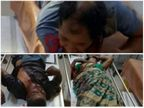 महिला राज मिस्त्री सहित 3 लोगों को उनके साथी ने मारा चाकू, एक की हालत गंभीर; NTPC अस्पताल में भर्ती छत्तीसगढ़,Chhattisgarh - Dainik Bhaskar