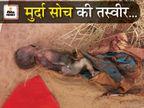 एक दिन की बच्ची के शरीर पर झुलसनेके निशान, लोग बोले- पालने में ही डाल जाते तो जिंदा बच जाती|नागौर,Nagaur - Dainik Bhaskar