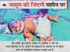 मां की गलती से बच्चे में पहुंचा कोरोना, जन्म के पांचवें दिन संक्रमण का पता चला; रेमडेसिविर इंजेक्शन भी लगाना पड़ा|गुजरात,Gujarat - Dainik Bhaskar