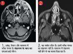 भाेपाल में 10 दिन में 50 लोगों में ब्लैक फंगल इंफेक्शन, आंखों की राेशनी पर असर|भोपाल,Bhopal - Money Bhaskar