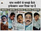 कोरोना से ठीक होने लगे थे, सिरदर्द शुरू हुआ और रोशनी कम होने लगी; अब दूसरी आंख में संक्रमण का है खतरा मध्य प्रदेश,Madhya Pradesh - Dainik Bhaskar