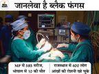 राजस्थान और MP में ही म्यूकरमाइकोसिस के 985 मरीज; 3 राज्य इसे महामारी घोषित कर चुके देश,National - Dainik Bhaskar