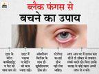 मेरठ में इंजेक्शन न मिलने से 24 घंटे के अंदर 5 मरीजों की मौत, वाराणसी में 2 और गोरखपुर में एक की जान गई|लखनऊ,Lucknow - Dainik Bhaskar