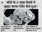 दिल्ली के मरीज में कोरोना के बाद व्हाइट फंगस से फूड पाइप, छोटी और बड़ी आंत में छेद; 4 घंटे सर्जरी करनी पड़ी देश,National - Dainik Bhaskar