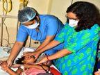 मंदबुद्धि पिता ने हंसिया से चार साल की बेटी का रेत दिया था गला, ऑपरेशन कर सांस की कटी नली को डॉक्टरों ने जोड़ दिया|जबलपुर,Jabalpur - Dainik Bhaskar