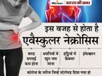 कोरोना के बाद जोड़ों में दर्द एवैस्कुलर नेक्रोसिस हो सकता है, जॉइंट रिप्लेसमेंट करवाना पड़ सकता है; मुंबई में मिले तीन मरीज ज़रुरत की खबर,Zaroorat ki Khabar - Money Bhaskar
