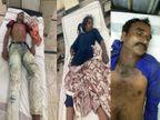 जबलपुर में आकाशीय बिजली गिरने से पिता-पुत्री सहित तीन की मौत, 6 झुलसे|जबलपुर,Jabalpur - Money Bhaskar