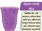 जीभेच्या रंगावरुन जाणुन घ्या तुम्ही किती निरोगी आहात, 9 संकेत...|जीवन मंत्र,Jeevan Mantra - Divya Marathi