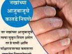 नखांवरुन जाणुन घ्या तुम्ही किती हेल्दी आहात, 9 आजारांचे संकेत...|जीवन मंत्र,Jeevan Mantra - Divya Marathi