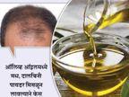 तारुण्यात पुरुषांना पडतेय टक्कल, जाणुन घ्या कशी थांबेल केस गळती...|जीवन मंत्र,Jeevan Mantra - Divya Marathi