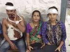 वसईत जमिनीच्या वादात भाजप नेत्याचा महिलेसह कुटुंबीयांवर हल्ला; तीन जण गंभीर जखमी|मुंबई,Mumbai - Divya Marathi
