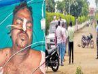 वाळू व्यावसायिकावर प्राणघातक हल्ला; गंभीर जखमी भावाला म्हणाला, मेलाे तर खुनाचा गुन्हा दाखल करा जळगाव,Jalgaon - Divya Marathi