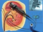 जगातील सर्वात लहान रुग्णाची झाली सर्जरी, दोन्ही किडनीतून काढले 8-9 एमएमचे 3-3 स्टोन  - Divya Marathi