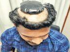 डोक्यावरचे केस कापून विगखाली लपवले एक किलो सोने, कोचीन एअरपोर्टवर तस्कर अटक| - Divya Marathi