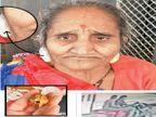 સુરતમાં સ્નેચરોએ 70 વર્ષનાં માજીનાં લટકણિયાં ખેંચી કાન ચીરી નાખ્યા, ગોડાદરામાં બુટ્ટીની લૂંટ સાથે પોલીસની આબરૂ પણ લૂંટાઈ|સુરત,Surat - Divya Bhaskar