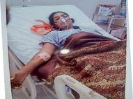 डॉक्टर ने पेट में छोड़ दी पट्टी, 17 महीने बाद वडोदरा में फिर ऑपरेशन हुआ तो पता चला|रतलाम,Ratlam - Dainik Bhaskar