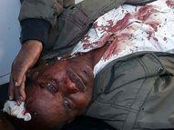 बड़े ने छोटे पर कुल्हाड़ी से किया हमला, पत्थरबाजी में तीन महिला समेत 7 घायल|जमशेदपुर,Jamshedpur - Dainik Bhaskar