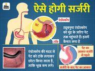 पेट का आकार छोटा करके वजन को घटाने वाली सर्जरी, दावा; 30 किलो तक घटा सकेंगे वजन लाइफ & साइंस,Happy Life - Dainik Bhaskar