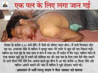 बांधवगढ़ में बाघिन ने किया हमला, पीड़ित बोला- एक पल के लिए सामने मौत देख कर बंद हो गई थीं आंखें, भैंसों ने आकर बचा ली जान|छिंदवाड़ा,Chhindwara - Dainik Bhaskar