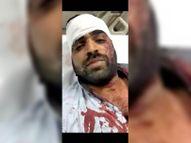 जन्मदिन मनाते अंडे फेंके टोका तो पत्थर से डेढ़ दर्जन युवकों ने जीजा-साले पर किया हमला|भीलवाड़ा,Bhilwara - Dainik Bhaskar
