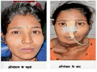 महिला के मुंह में फैल गया था कैंसर, 8 घंटे के ऑपरेशन के बाद डॉक्टरों ने दी जिंदगी|बिलासपुर,Bilaspur - Dainik Bhaskar