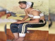 पड़ाेसी के घर में काम बंद नहीं किया ताे 4 युवकाें ने राजमिस्त्री के सीने में घाेंपा सुआ, सिर में चाकू मारा|पानीपत,Panipat - Dainik Bhaskar