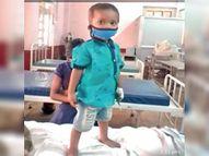दो साल के बच्चे की सांस नली में मूंगफली का दाना फंस गया, डॉक्टर ने निकाला बिलासपुर,Bilaspur - Dainik Bhaskar