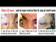 कोरोना के बाद डायबिटीज 300 से ऊपर है तो ब्लैक फंगल का खतरा ज्यादा, दो दिन में 9 मरीज मिले|ग्वालियर,Gwalior - Dainik Bhaskar