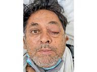 ब्लैक फंगस की दवा बाजार में खत्म; कभी जिले में साल में 10 मरीज आते थे, अब राेजाना 5 से ज्यादा|पानीपत,Panipat - Dainik Bhaskar