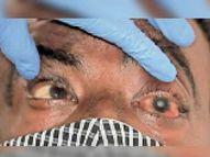 ब्लैक फंगस के आठ और मरीज मिले तीन संदिग्ध आईजीआईएमएस में भर्ती,कोरोना से ठीक हुए 42 लोग अबतक हो चुके संक्रमित|पटना,Patna - Dainik Bhaskar