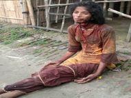 मरा समझकर फेंक गए, पर बच गई महिला, गोरखपुर मेडिकल कॉलेज में चल रहा इलाज, पुलिस को बताया पति ने कर ली है दूसरी शादी|गोरखपुर,Gorakhpur - Money Bhaskar