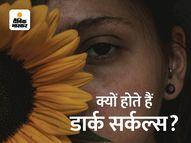 आंखों के नीचे आने वाले काले घेरे और कैसे ठीक होंगे ?|लाइफस्टाइल,Lifestyle - Money Bhaskar
