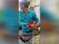 बैटरी से खेल रहा था मासूम; धमाके में एक उंगली उड़कर अलग हुई, दूसरी आधी कटी अशोकनगर,Ashoknagar - Money Bhaskar