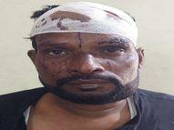 लड़की के घर वालों के सामने ही आशिक ने किया हमला, फिर गुस्साए परिजनों ने फोड़ दिया प्रेमी का सिर|भिलाई,Bhilai - Money Bhaskar