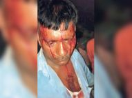भगड़वा पंचायत के निवर्तमान मुखिया और बीडीसी प्रत्याशी के समर्थकों में मारपीट, प्रत्याशी हरिलाल गंभीर|बेतिया (पश्चिमी चंपारण),Bettiah (West Champaran) - Money Bhaskar