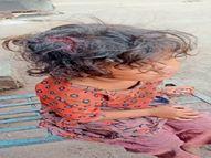 बच्ची पर कुत्ते ने किया हमला, सिर का मांस गायब, माता-पिता स्वास्थ्य केंद्र पहुंचे तो नर्सिंग स्टाफ ने भगाया|सागर,Sagar - Money Bhaskar