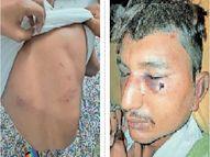 2 युवकों के साथ की मारपीट, दोनों जिला अस्पताल में भर्ती बाड़मेर,Barmer - Money Bhaskar