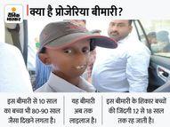 पा फिल्म के अमिताभ जैसा दिखता है गरियाबंद का शैलेंद्र; CM बघेल ने की मुलाकात|रायपुर,Raipur - Money Bhaskar
