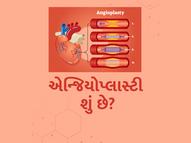 એન્જિયોપ્લાસ્ટી શું છે? તેનાથી માણસનો જીવ કેવી રીતે બચે છે?|હેલ્થ,Health - Divya Bhaskar