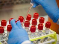 કોરોના ટેસ્ટ બન્યા અવિશ્વસનિય, રેપિડમાં પોઝિટિવ તો RT PCRમાં આવ્યો નેગેટીવ|ભાવનગર,Bhavnagar - Divya Bhaskar