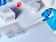 ખાનગી લેબમાં કોરોના ટેસ્ટ બંધ, 51 PHC અને 10 CHCમાં RT-PCR ટેસ્ટ માટે કીટ ઓછી મળતાં સંક્રમણ થવાની ભીતિ|વલસાડ,Valsad - Divya Bhaskar