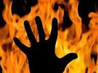 दाल फ्राई करती महिला पर सैनिटाइजर छलका, आग भभकने से पति भी झुलसा|इंदौर,Indore - Dainik Bhaskar