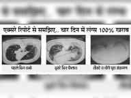 इस बार कोरोना से 24 घंटे में ही 20 गुना तक बढ़ रहा फेफड़े में इंफेक्शन|रायपुर,Raipur - Dainik Bhaskar
