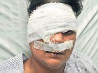 ब्लैक फंगस: 7 से बढ़कर 16 रोगी, 1 की रोशनी गई|उदयपुर,Udaipur - Dainik Bhaskar
