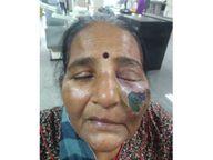 અમદાવાદમાં કોરોનાના દર્દી પર સ્ટિરોઇડના આડેધડ ઉપયોગથી મ્યુકોમાઈક્રોસિસ વકર્યો, બે મહિનામાં દાંત-જડબાંની 60 સર્જરી|અમદાવાદ,Ahmedabad - Divya Bhaskar