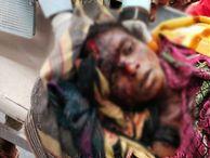सिर के एक हिस्से को नोच खाया, शरीर के कई अंगों को भी पहुंचाया नुकसान; हालत गंभीर|छत्तीसगढ़,Chhattisgarh - Money Bhaskar